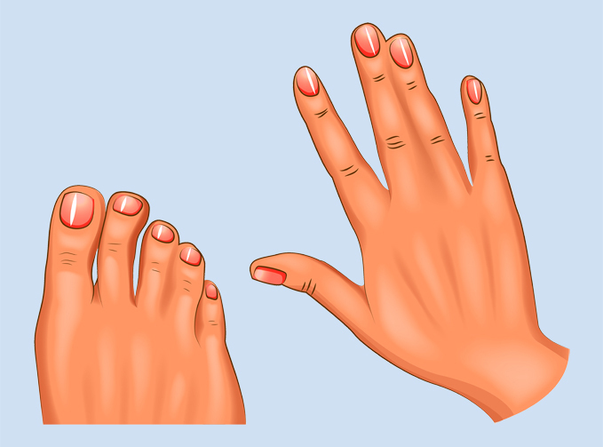 An illustration of a hand and foot with syndactyly showing webbed fingers and toes