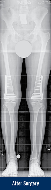 X-ray of a patient's legs with knock knees after acute corrective surgery on both legs, showing fixator-assisted plating of both femur bones.