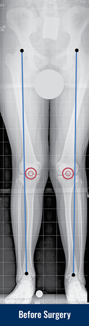 X-ray of a patient's legs with knock knees before surgery with lines drawn to indicate the misalignment of the knees.