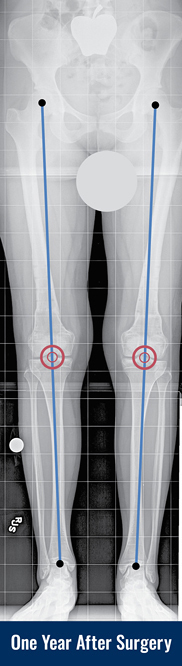 X-ray of a patient's legs with knock knees one year after surgery with lines drawn to indicate normal alignment.