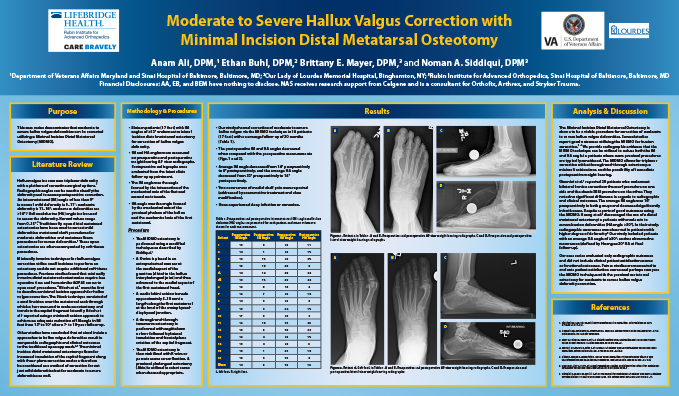 Research poster presented at the Annual Meeting of the American College of Foot and Ankle Surgeons in San Antonio, Texas in February 2020 - Moderate to Severe Hallux Valgus Correction with Minimal Incision Distal Metatarsal Osteotomy