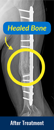 After x-ray showing healed bone from treatment for a forearm nonunion.