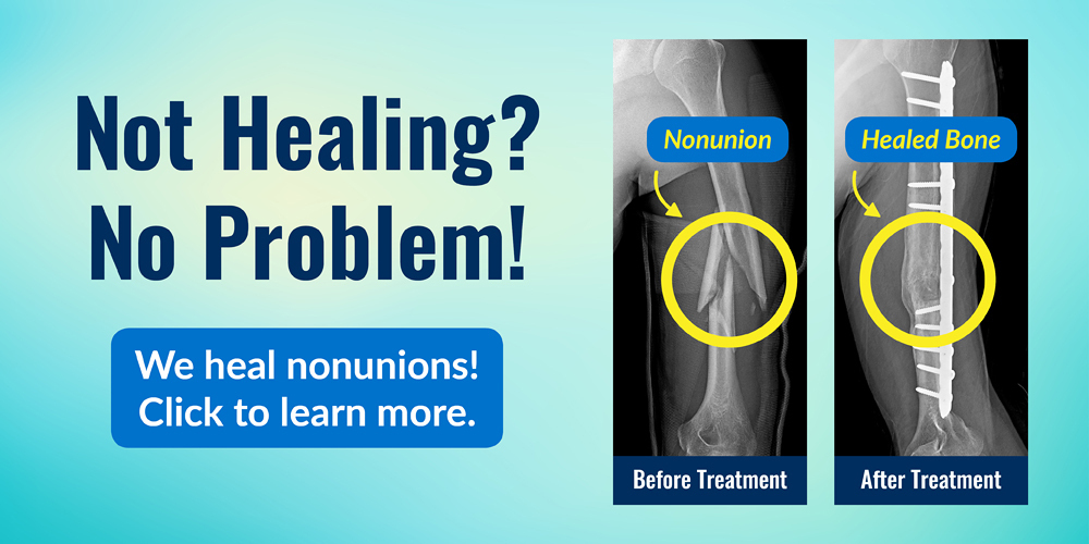 Not healing? No problem! The International Center for Limb Lengthening heals nonunions. Before and after x-rays showing healed bone from treatment for a forearm nonunion.