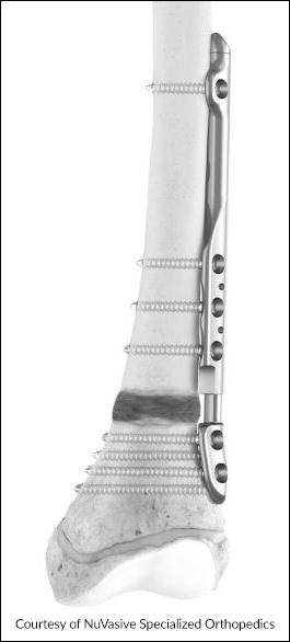 Illustration of NuVasive's distal femur Precice Plate on a femur bone