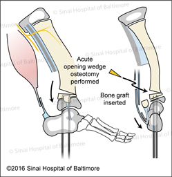Super-ankle Surgical Technique for Supramalleolar Type Fibular Hemimelia (Paley Type 3A - ankle type). Acute opening wedge osteotomy performed. Bone graft is inserted.