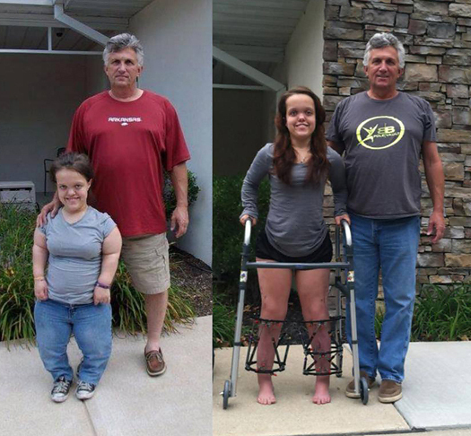 Two side-by-side pictures of Chandler standing in front of the Hackerman-Patz House at Sinai Hospital with her father, before treatment and during treatment, She has an external fixator on each leg in the during treatment picture and it shows how much taller she is.
