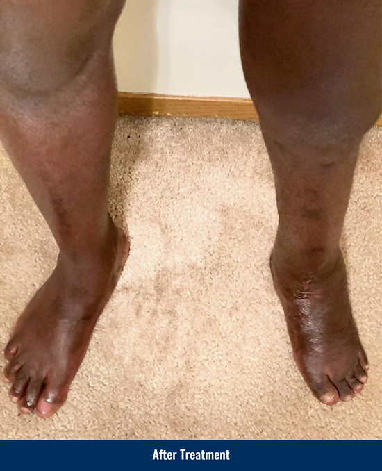 Ebou's foot after treatment