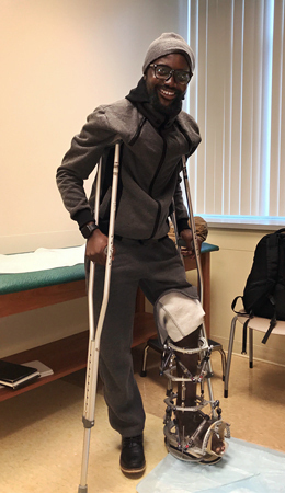 Ebou wearing an external fixator and using crutches in clinic