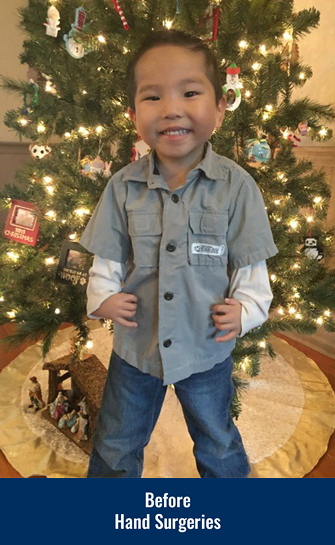 James smiling in front of a Christmas tree before his hand surgeries