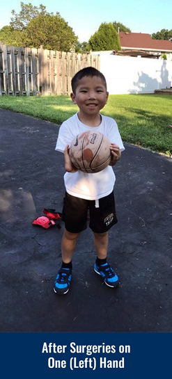 James playing with a basketball outside after having surgery on his left hand