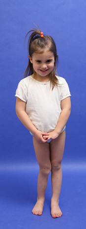 Cassidy as a very young girl in a clinic picture showing her leg length discrepancy