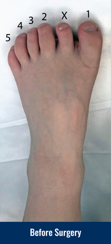 """Color photo describing the condition and treatment of pediatric polydactyly of the foot: Child born with 6 toes. The one labelled """"X"""" is the extra toe that needs to be removed."""
