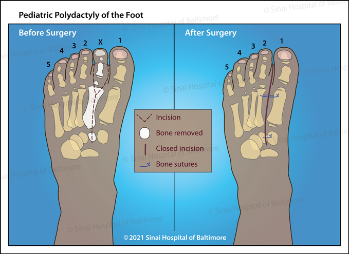 Illustration of a foot before and after surgery to remove an extra toe in a pediatric patient who has polydactyly of the foot