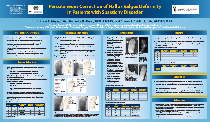 Research poster presented at the Annual Meeting of the American College of Foot and Ankle Surgeons in New Orleans, Louisiana in February 2019 - Percutaneous Correction of Hallux Valgus Deformity in Patients with Spasticity Disorder