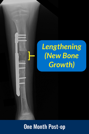 X-ray of a tibia one month after surgery to apply a Precice Plate, showing lengthening (new bone growth)