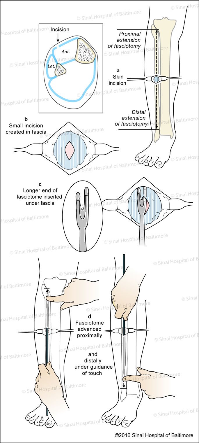 Prophylactic Anterior Compartment Fasciotomy: A, Skin incision; B, Fascial incision; C, Longer end fasciotome inserted under fascia; D, Fasciotome is advanced proximally and distally under guidance of touch.