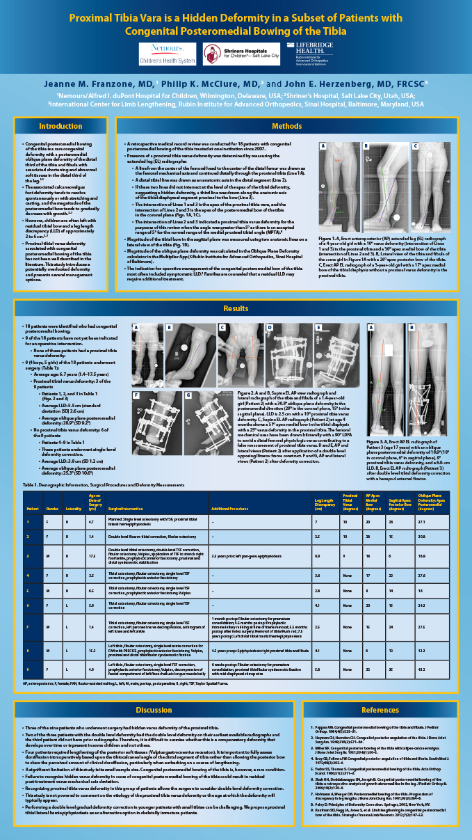 Research poster presented at the Annual Meeting of the European Paediatric Orthopaedic Society in Tel Aviv, Israel in April 2019 - Proximal Tibia Vara is a Hidden Deformity in a Subset of Patients with Congenital Posteromedial Bowing of the Tibia
