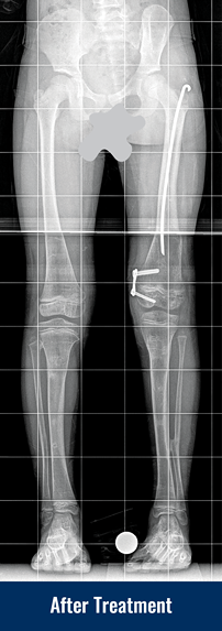 An X-ray of a patient's legs after treatment for a severe developmental bone deformity, showing her legs are now straightened