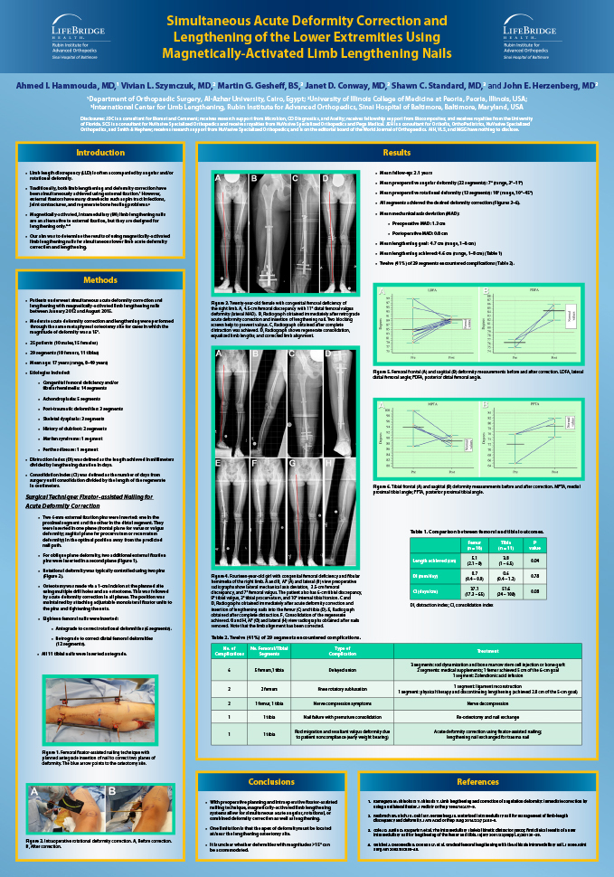 Research poster presented at the ILLRS and ASAMI Congress and 3rd World Ortho ReCon Meeting in Lisbon, Portugal in August/September 2017 - Simultaneous Acute Deformity Correction and Lengthening of the Lower Extremities Using Magnetic Limb Lengthening Nails