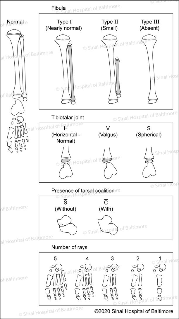 Stanitski Classification of Fibular Hemimelia: Type I Type II and Type III; Tibiotalar Joint: Horizonal, normal; valgus,; spherical; presence of tarsal coalition: With and without; Number of rays: 1–5