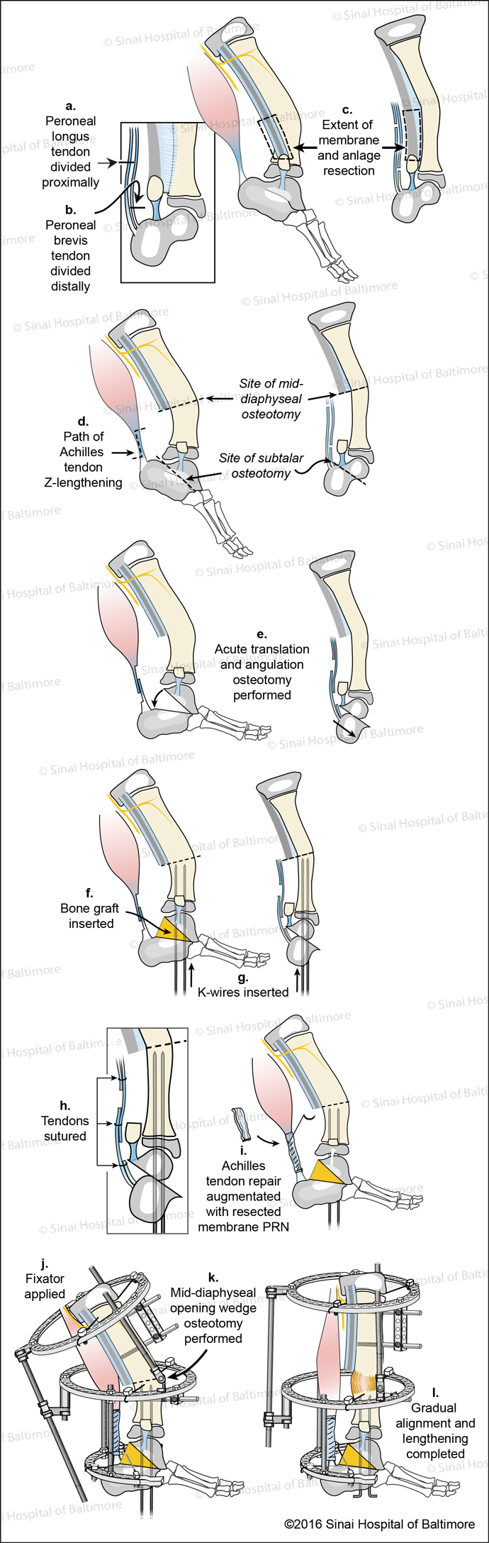 Super-ankle Surgical Technique for Subtalar Type Fibular Hemimelia (Paley Type 3B) Fig. A, Peroneal longus tendon is divided proximally. B, Peroneal brevis tendon is divided distally. C, The extent of the membrane and anlage resection is identified. D, The path of the Achilles tendon Z-lengthening and site of mid-diaphyseal and subtalar osteotomies are identified. E, Acute translation and angulation osteotomy are performed. F, Bone graft is inserted; G, K-wires are inserted; H, Tendons are sutured; I, Achilles tendon repair is augmented with resected membrane as needed; J, The external fixator is applied; K, A mid-diaphyseal opening wedge osteotomy is performed; L, Gradual alignment and lengthening is completed.