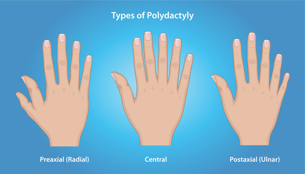 Illustration of three hands showing the various types of Polydactyly: Preaxial (Radial), Central, and Postaxial (Ulnar)