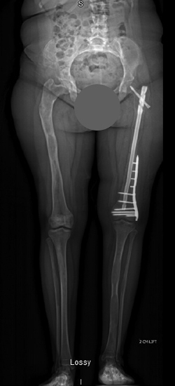 X-ray showing the corrected bone deformity after surgery using a combination of fixator assisted nailing and plating techniques