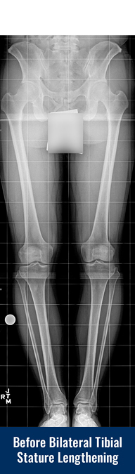 X-ray of a patient's legs before undergoing bilateral tibial cosmetic leg lengthening