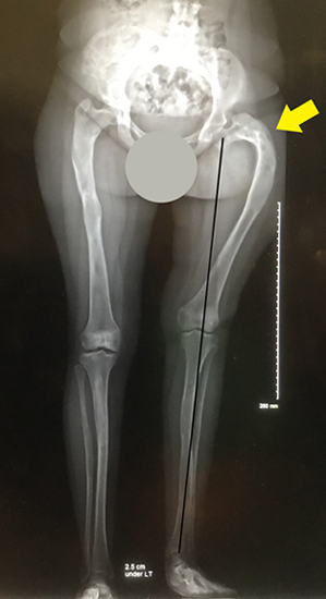 X-ray showing how the hip and femur bone were deformed as a result of fibrous dysplasia