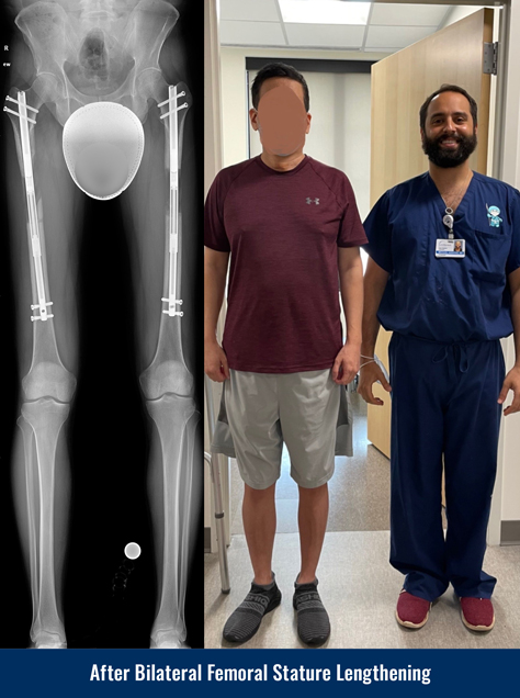 X-ray of a patient's legs after undergoing bilateral femoral cosmetic leg lengthening, showing internal lengthening nails in both femur bones. Photo of the patient standing next to Dr. Michael Assayag 3 months after surgery.