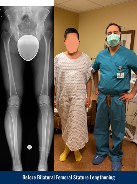 X-ray showing a patient's legs before undergoing bilateral femoral cosmetic leg lengthening. Photo of the patient in a hospital gown standing next to Dr. Michael Assayag before the surgery.